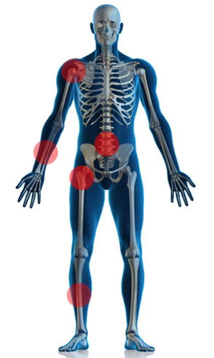 самые распространенные участки, где могут произойти переломы костей при остеопении