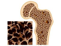 Полная характеристика остеопении: суть болезни, причины, признаки и лечение