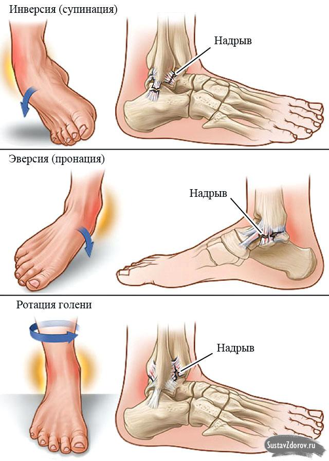 Опух сустав на щиколотке медикаментозное лечение воспаления суставов ног