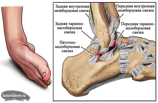 Травма голеностопного сустава при беге сколько стоит замена сустава в колене