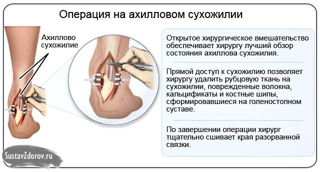 операция на пяточном сухожилии