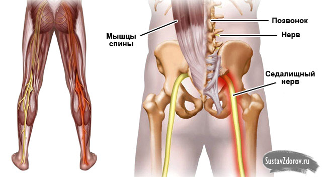 Защемление в тазобедренном суставе лечение