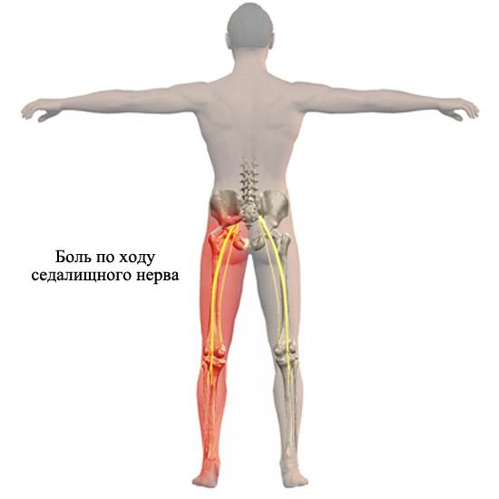 распространение боли при ущемлении седалищного нерва