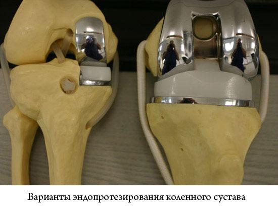 варианты эндопротезирования коленного сустава