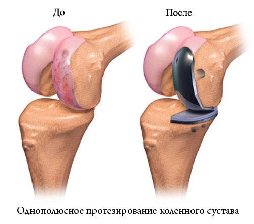 однополюсное протезирование коленного сустава