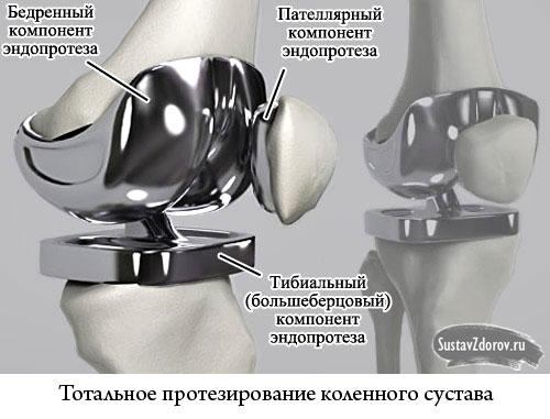 тотальное протезирование колена