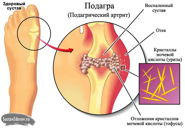 Отложение солей в суставах пальцев ног лечение