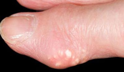 дэнс - терапия расстяжение голеностопного сустава