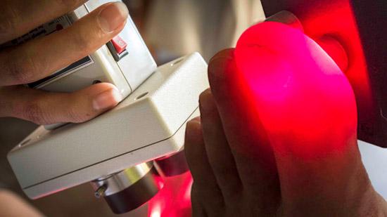 лазеротерапия при подагре