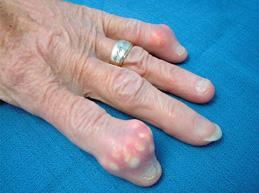 отложение солей в суставах пальцев рук