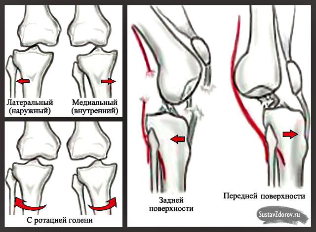 Вывих коленного сустава центр суставной боли сергиенко