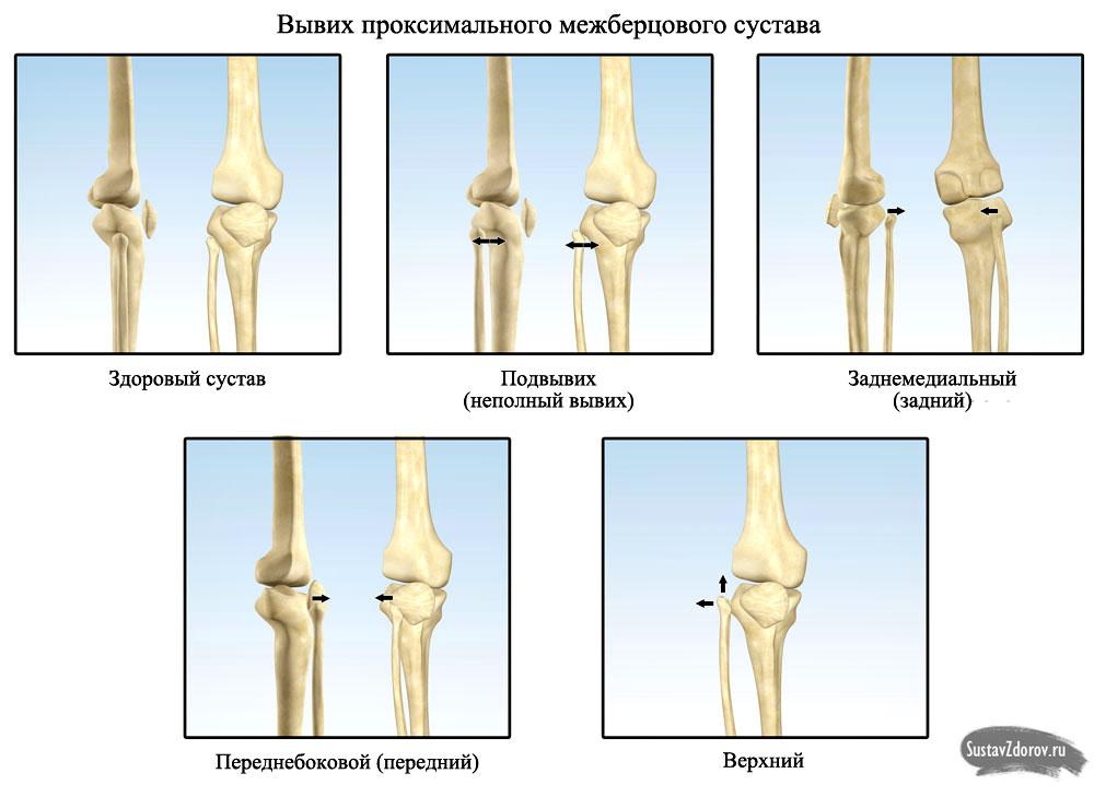 Вывих коленного сустава: причины, симптомы, лечение и прогноз