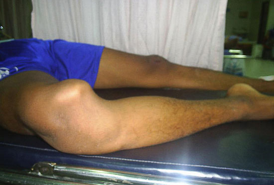 вывих голени правой ноги