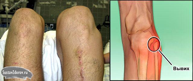 вывих головки малоберцовой кости на левой ноге