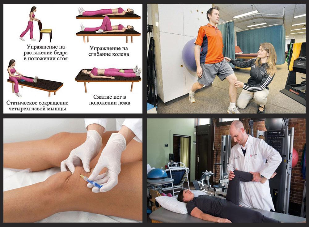 физиотерапия после растяжения связок коленного сустава