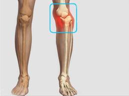 вывих левого коленного сустава