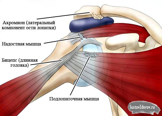 Плечелопаточный периартрит – симптомы и лечение