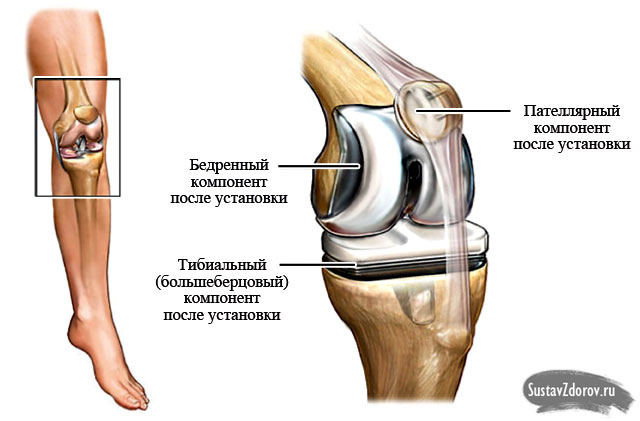 Упражнения для реабилитации коленного сустава после эндопротезирования