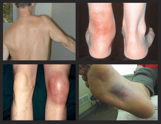 болезни околосуставных мягких тканей
