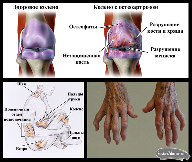 полиостеоартроз и места его расположения