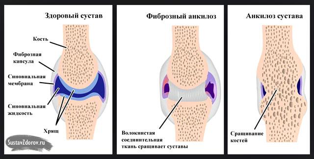 образование анкилоза между суставными поверхностями