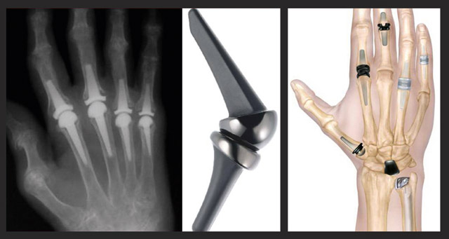 эндопротезирование суставов в руке