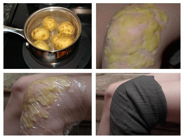 применение картофеля для прогревания сустава