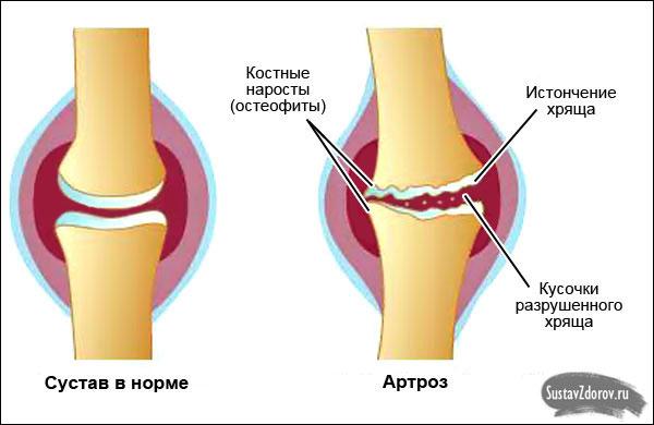 нормальный коленный сустав и пораженный артрозом