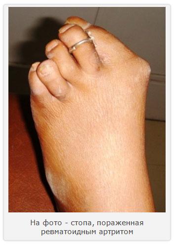 стопа, пораженная ревматоидным артритом