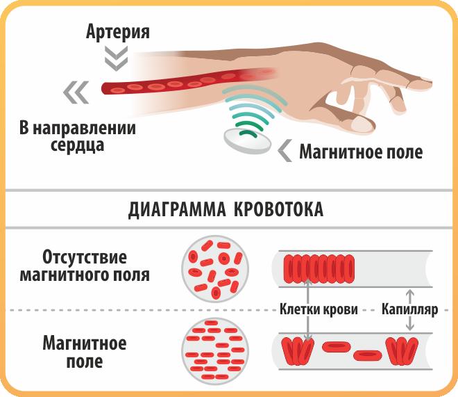 диаграмма кровотока при магнитотерапии