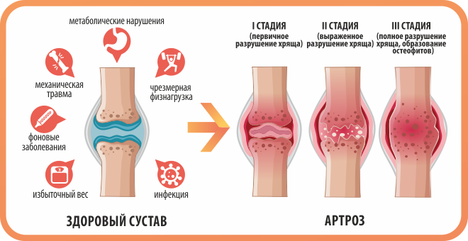 здоровый сустав и стадии артроза