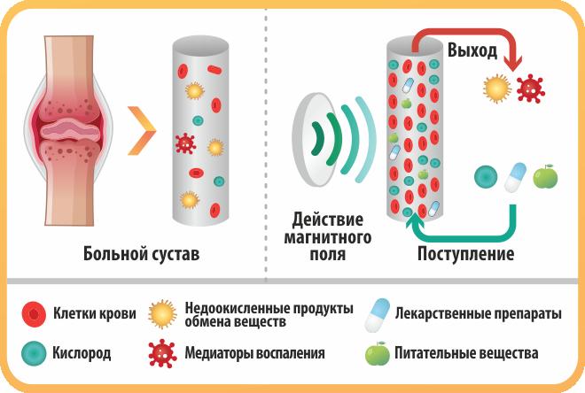 механизм действия магнитотерапии