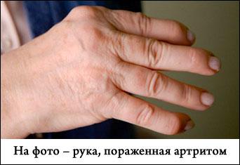 Артроз ног причины симптомы лечение