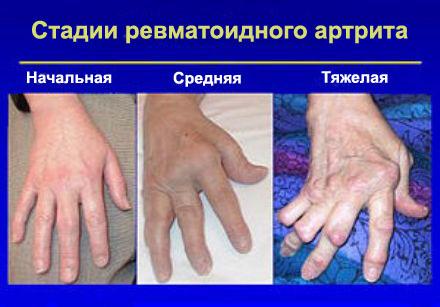 артрит руки фото
