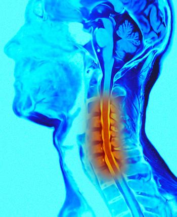 Лечение остеохондроза харьков